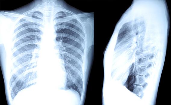 lung-surveillance-program03